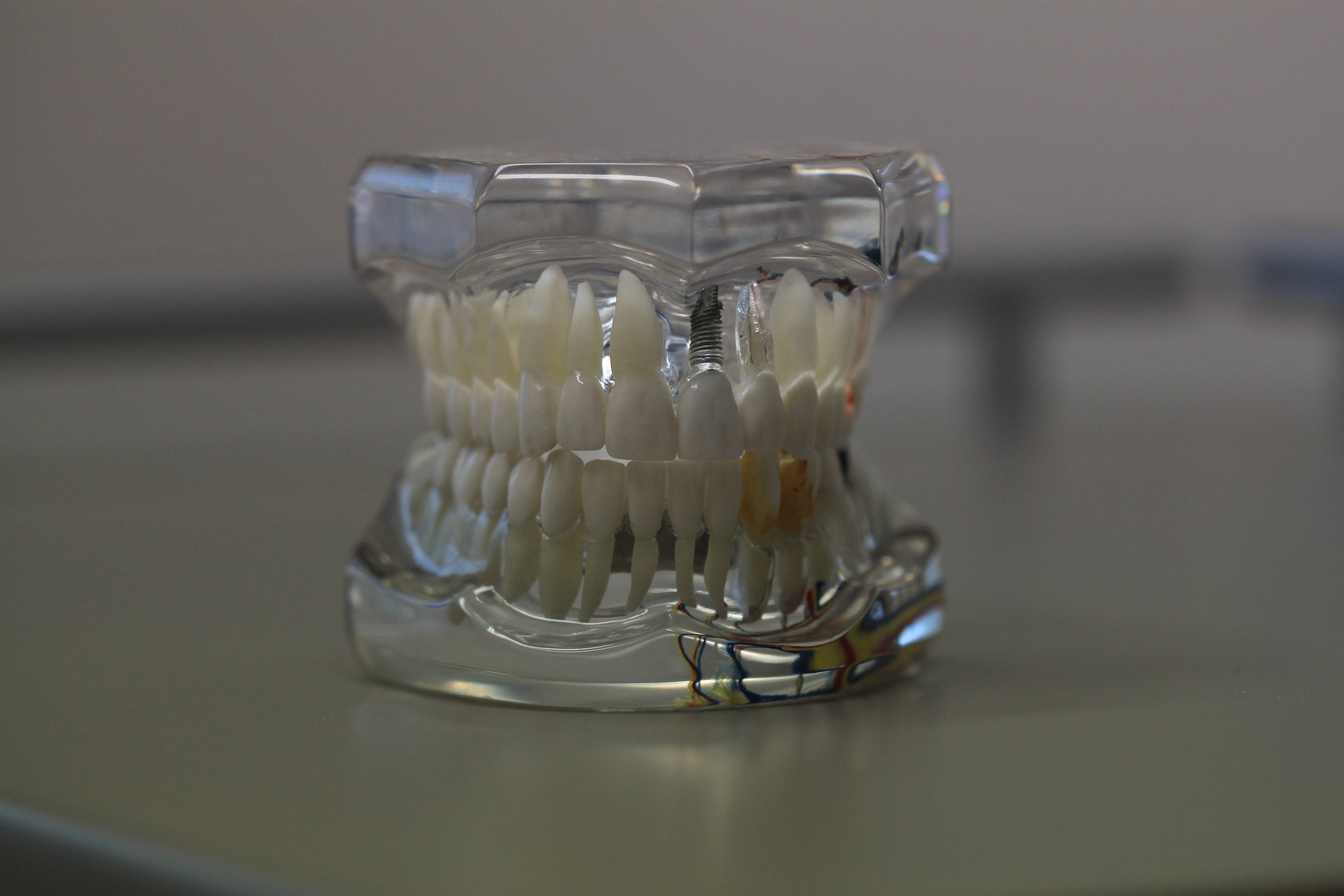 Czy można spać w protezie zębowej? Odpowiadamy na ważne pytania!