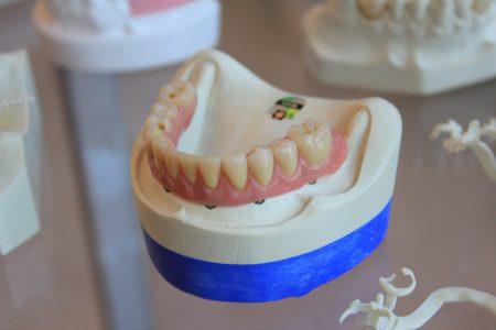 Czy po wyrwaniu zęba można palić?