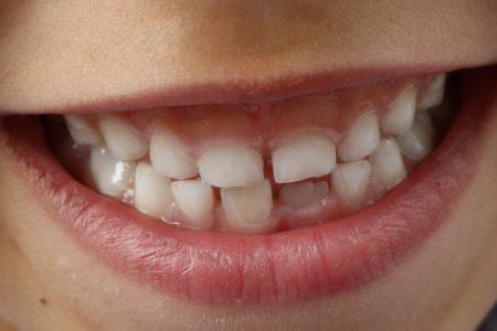 Co zrobić z diastemą? Czy to problem dla stomatologa?