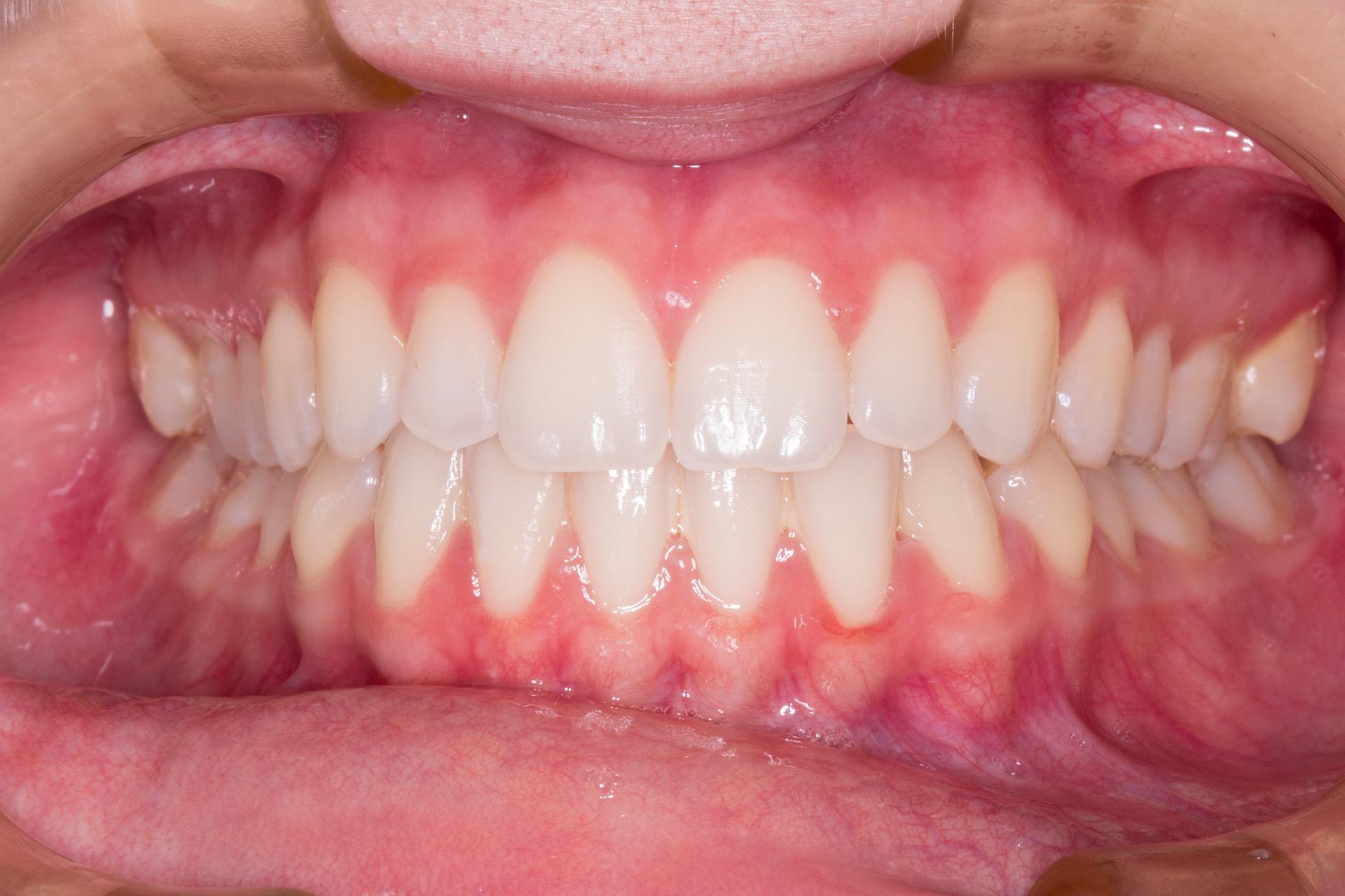 Co na zapalenie jamy ustnej? Jak leczyć zapalenie jamy ustnej?