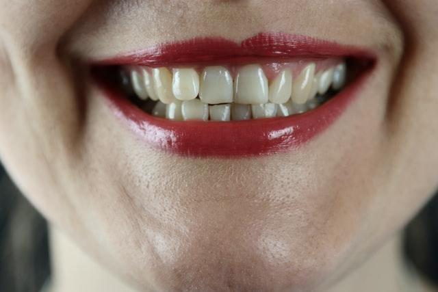 Czego nie można jeść po piaskowaniu zębów?